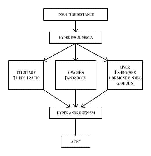 how hormonal acne in polycystic ovarian syndrome pcos is caused etiopathogenesis flowchart role of insulin and androgen in acne