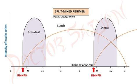 split mixed regimen using various insulin types-regular insulin and NPH insulin