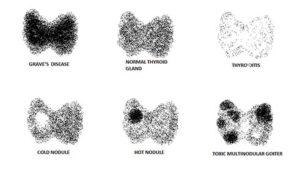 thyroid scan -diagnosis of hyperthyroidism
